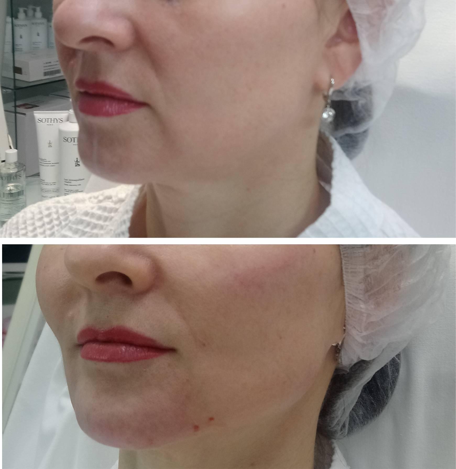 Морщины верхней трети лица: типизация, клиника, программы коррекции