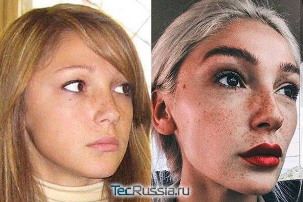 Виктория романец до и после пластики. фото, вес и рост, параметры фигуры. что изменилось после похудения, операций