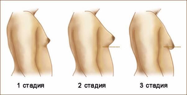 До скольки лет может расти грудь у девушек?