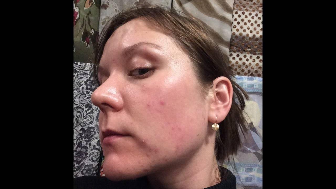 Демодекс: лечение и решение проблемы в домашних условиях