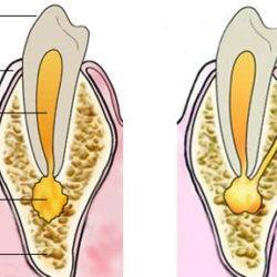 В дырке зуба выросла десна: почему так произошло и что нужно делать?