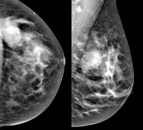 Симптомы листовидной фиброаденомы молочной железы, диагностика и лечение