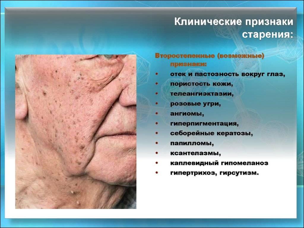 Фотостарение кожи: что это такое, причины, профилактика и лечение