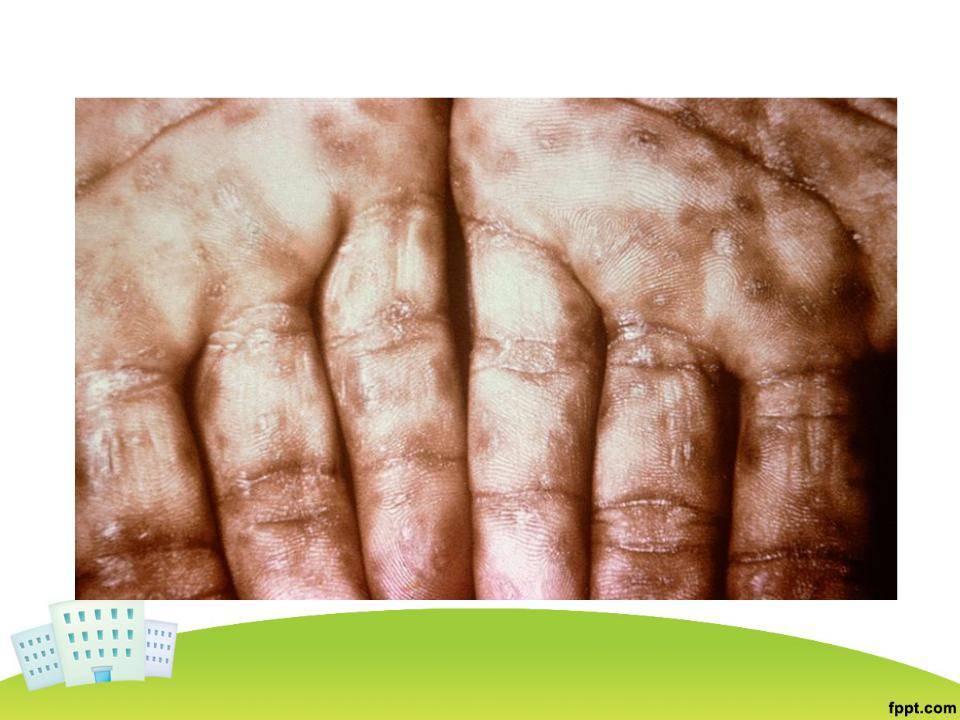 Cифилис: фото симптомов во всех подробностях
