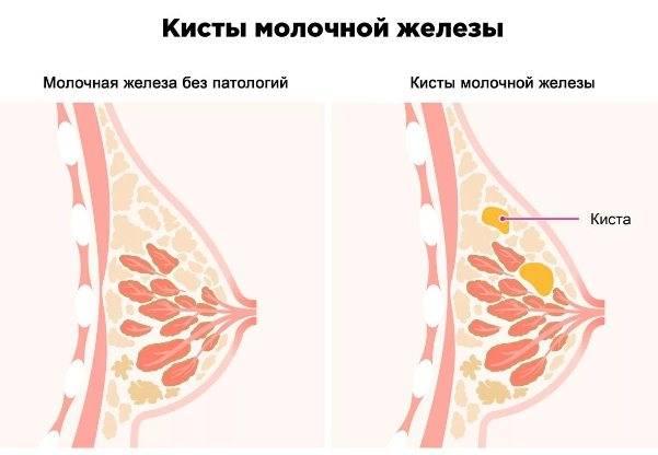 Причины крови из молочной железы у женщин