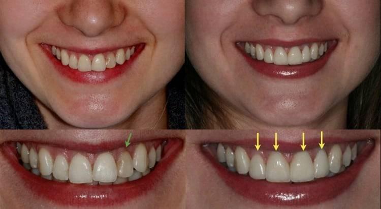 Это должен знать каждый! удаление зуба из десны: этапы и техники операции, описание процедуры