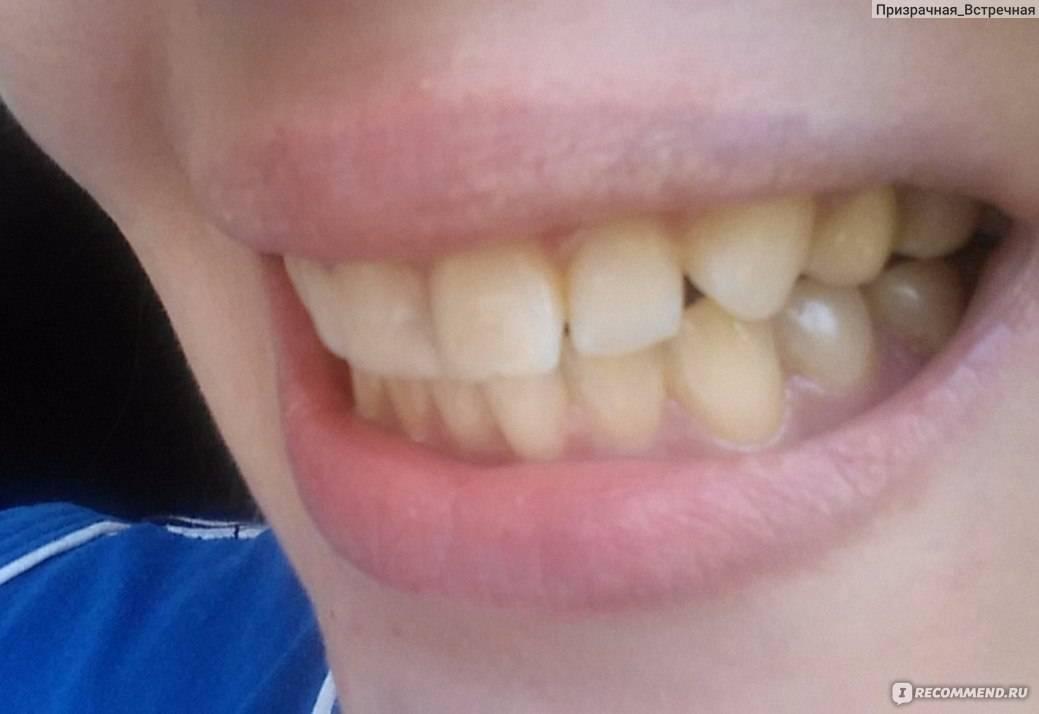 Можно ли отбелить зуб, из которого удалили нерв?