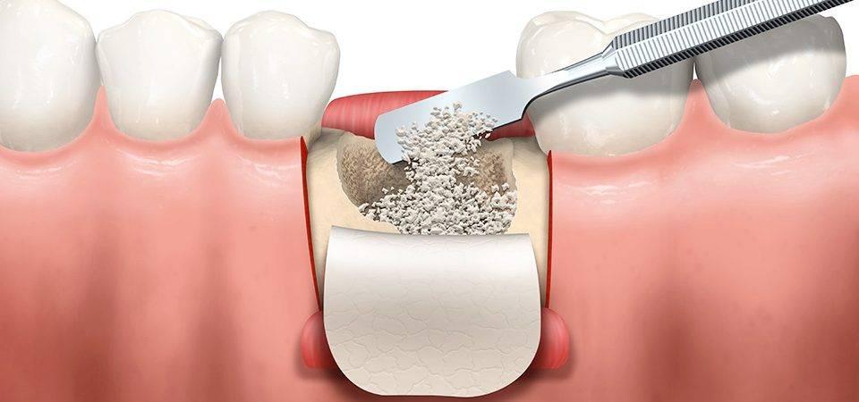 Болит имплант зуба через 5 лет