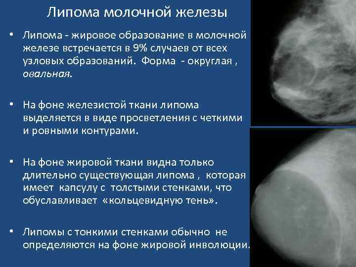 Причины и лечение узлов в груди
