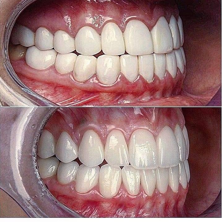 Элайнеры для исправления прикуса зубов