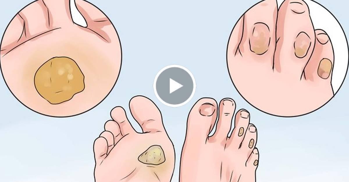 Сухая мозоль на пальце ноги: как справиться с проблемой