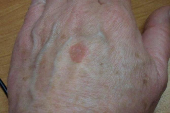 Появились пятна на коже с красным ободком— это лишай или грибок?