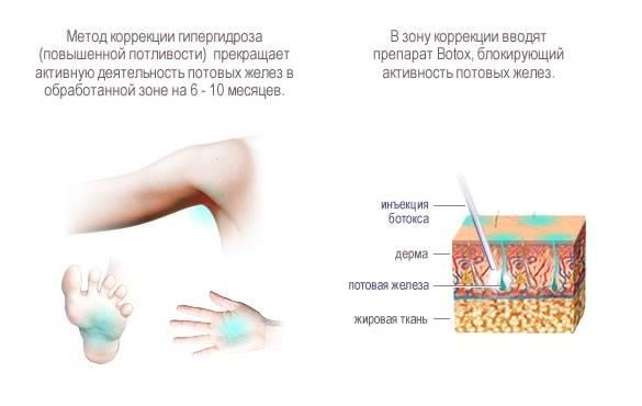 Лечение гипергидроза в домашних условиях