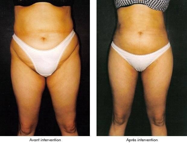 Криолиполиз: польза и вред, эффективность процедуры, отзывы, фото до и после