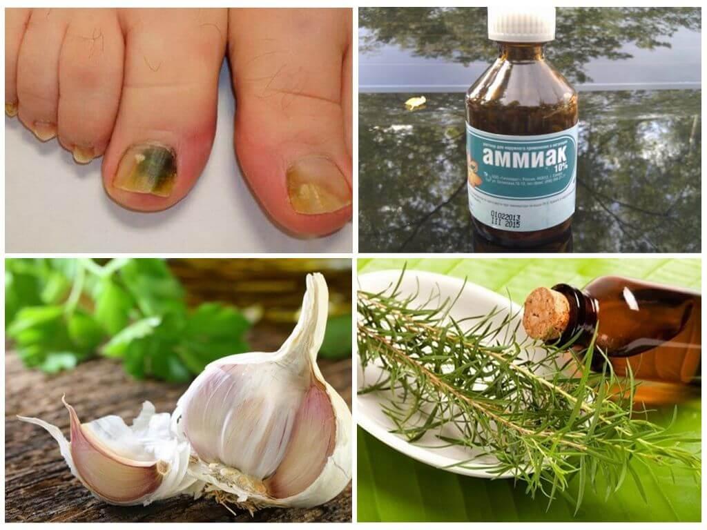 Масло чайного дерева от грибка ногтей — отзывы, применение и эффект