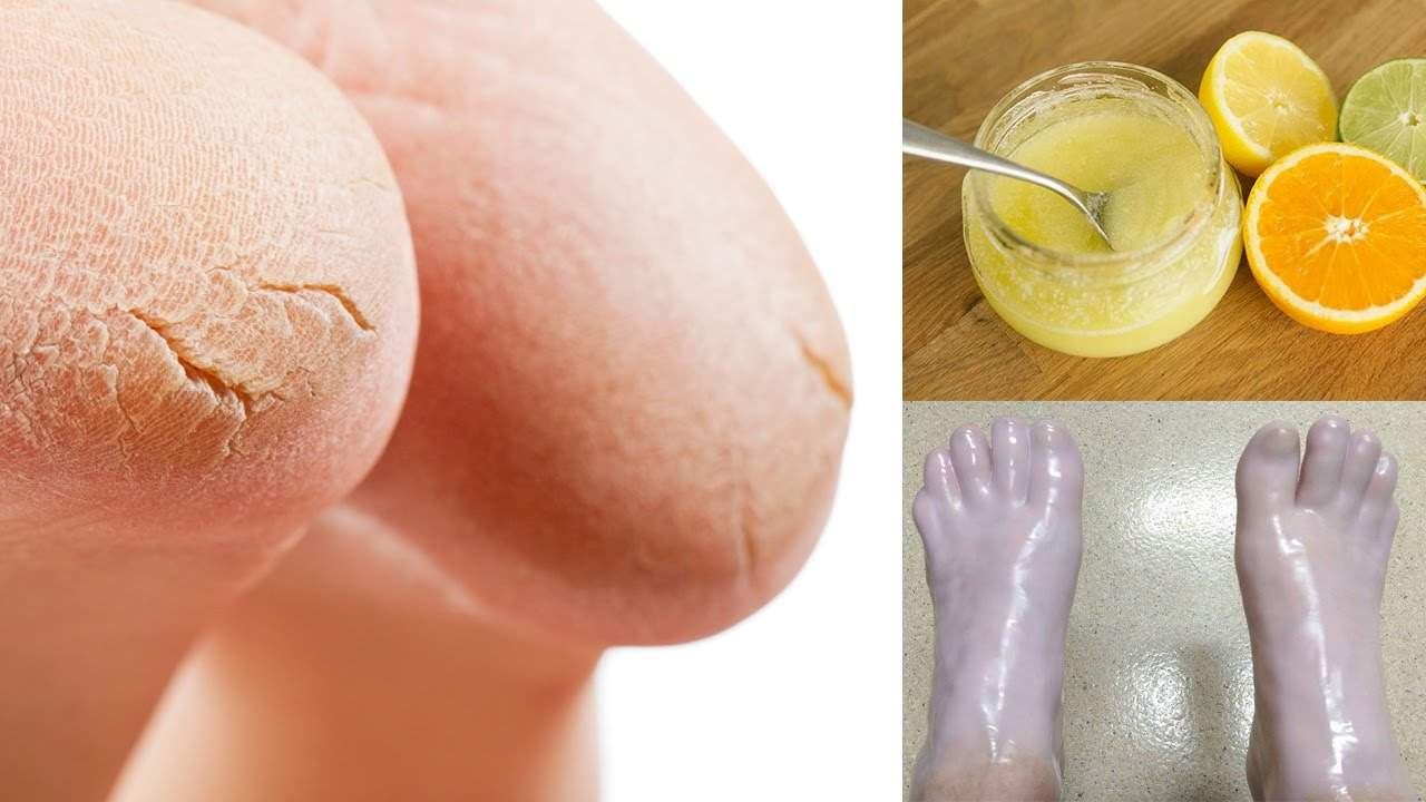Проблемы кожи стоп и как действовать мастеру педикюра при их наличии