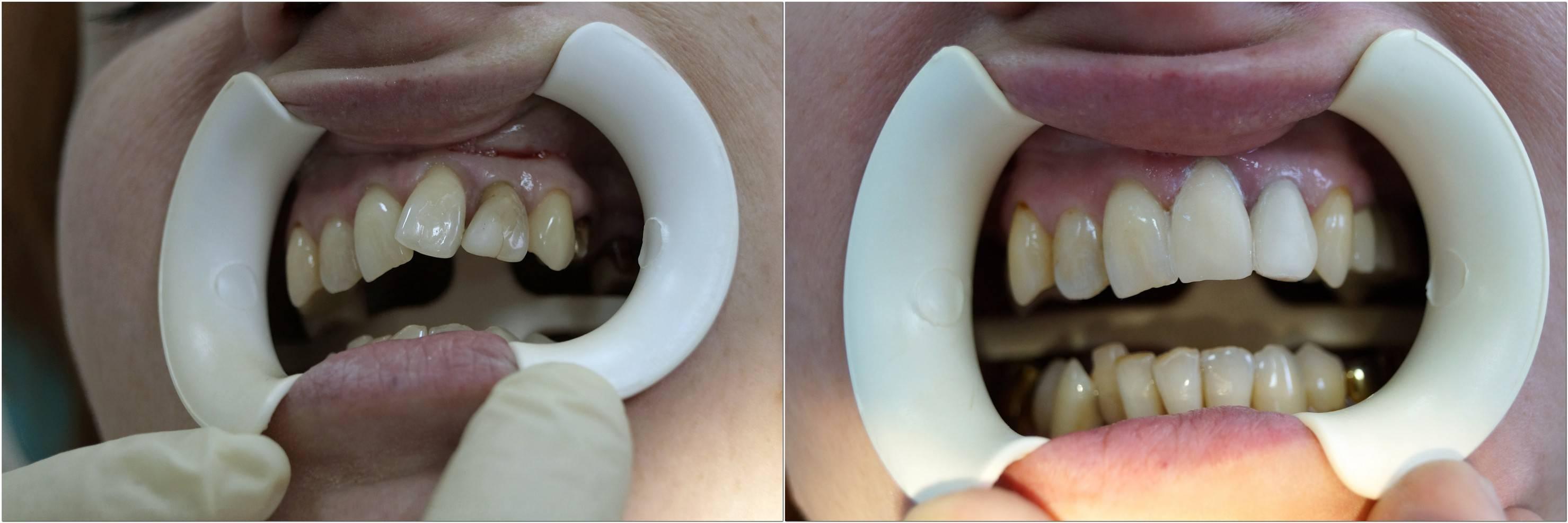 Можно ли убрать клыки последствия и опасности удаления зубов на верхней челюсти