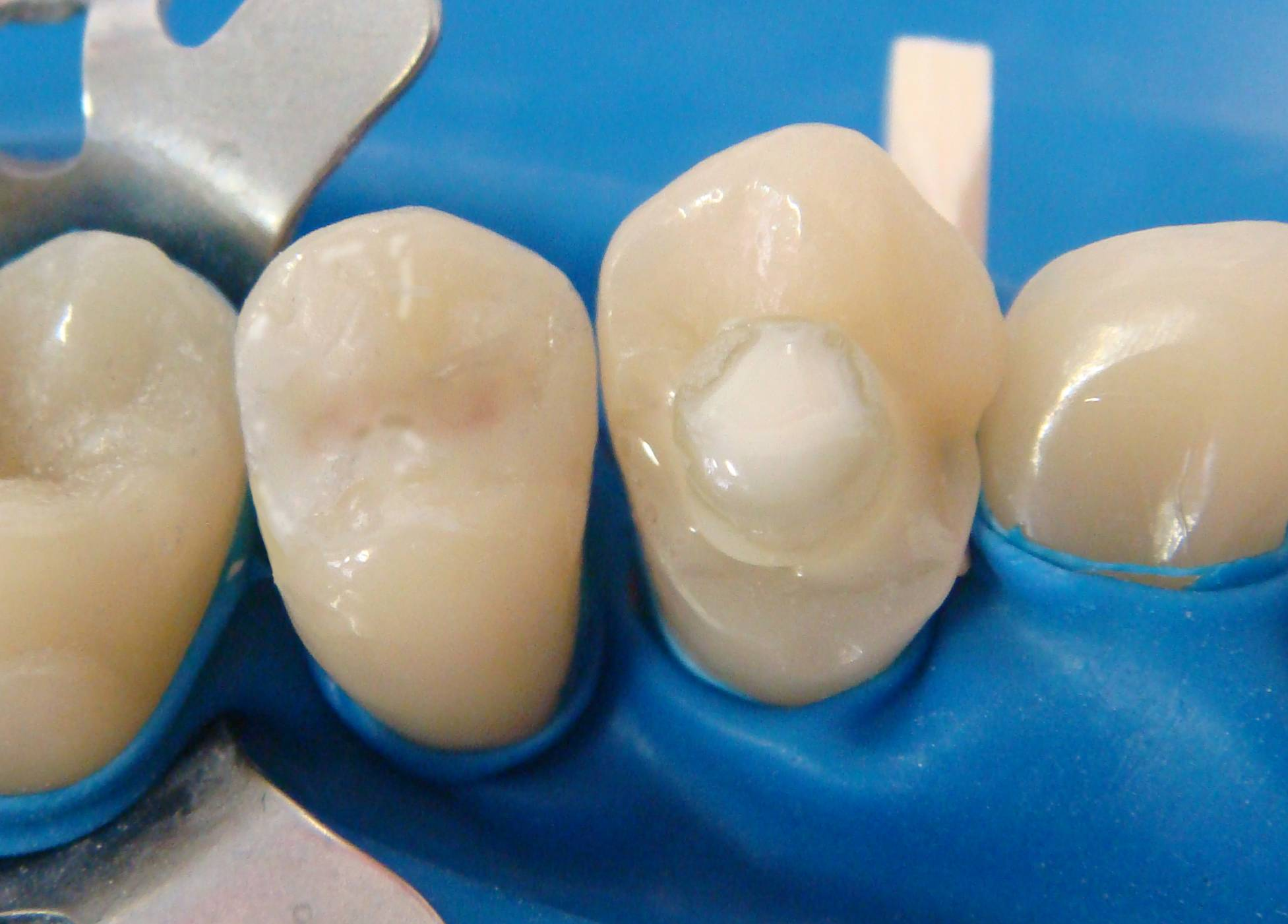 Анкерные штифты в стоматологии