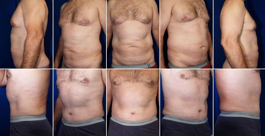 Устранение гинекомастии (коррекция груди у мужчин)
