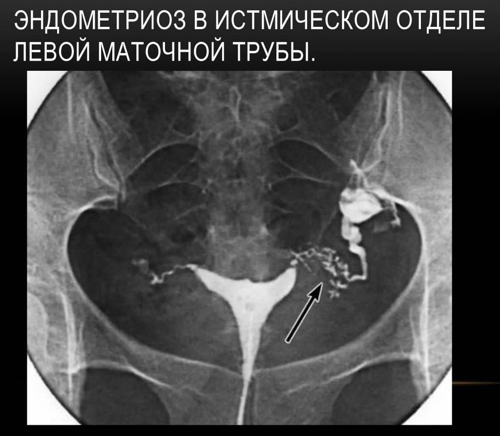 Проходимость маточных труб: как ее проверяют, методы исследования(рентген, узи, мрт, пертурбация), какой способ лучше, можно ли оценить трубы в домашних условиях