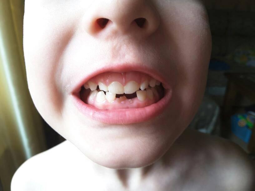 Что делать, если не растут зубы у ребенка