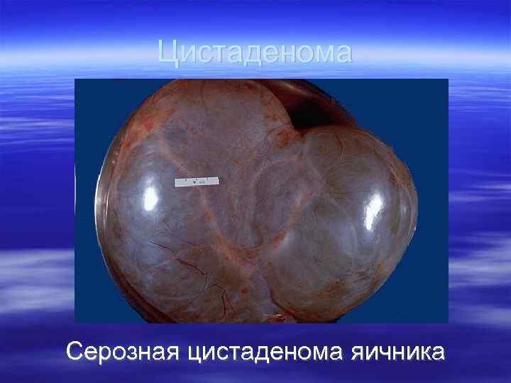 Цистаденома яичника