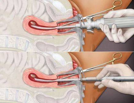 Миома матки в сочетании с эндометриозом — признаки, лечение