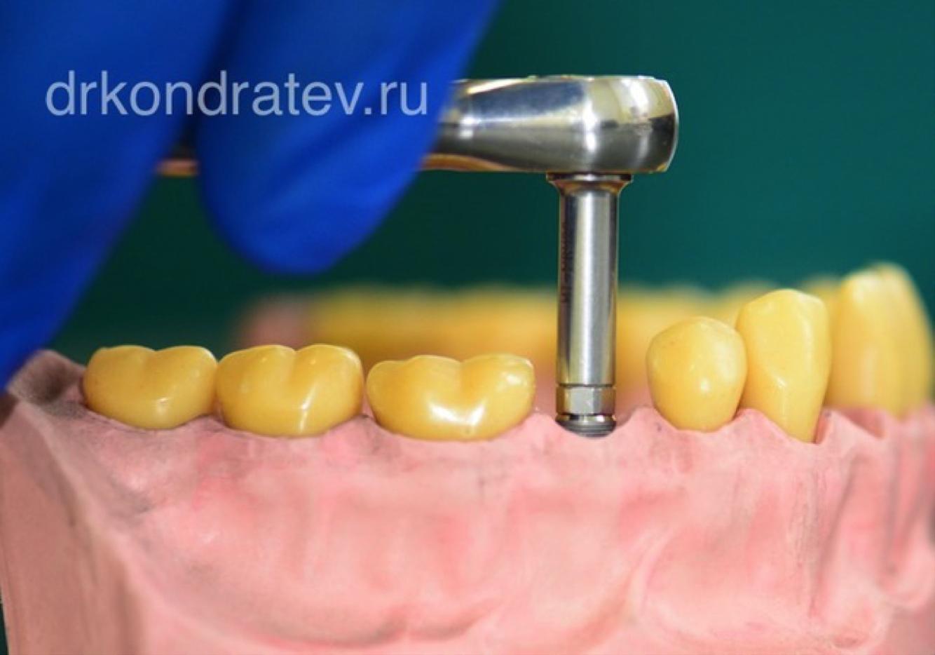 7 интересных фактов о формирователе десны при имплантации зубов