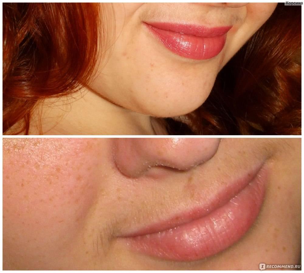 5 наименее болезненных способов убрать усики над губой