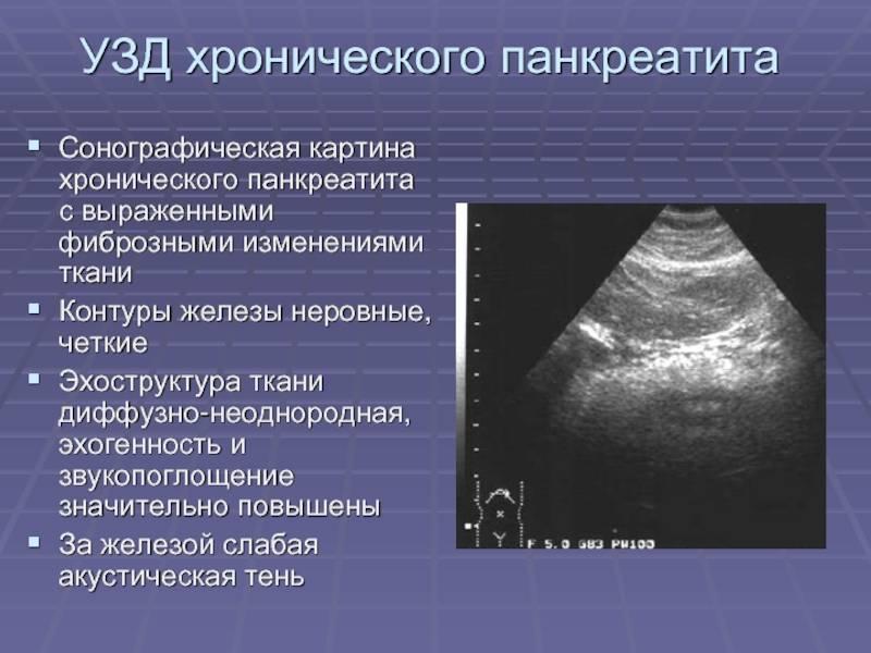 Диффузная неоднородность поджелудочной железы