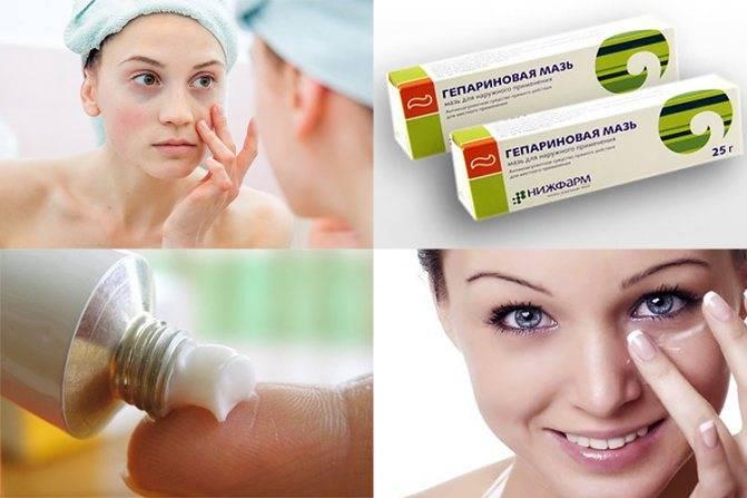 Гепариновая мазь от морщин: альтернатива косметическим средствам?