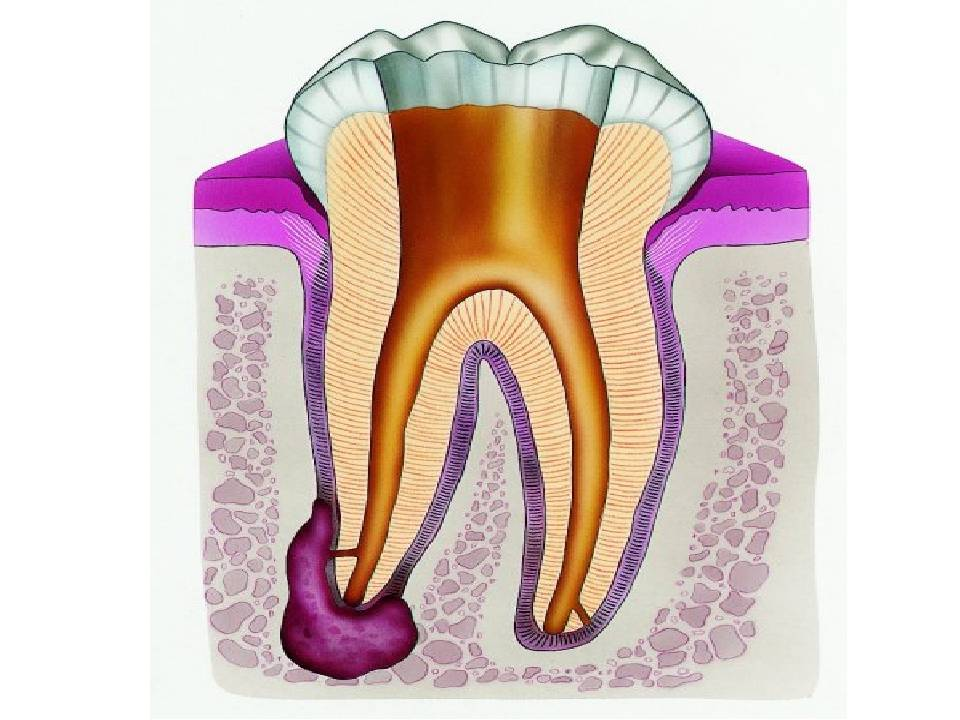 Причины появления и методы лечения воспаления надкостницы зуба