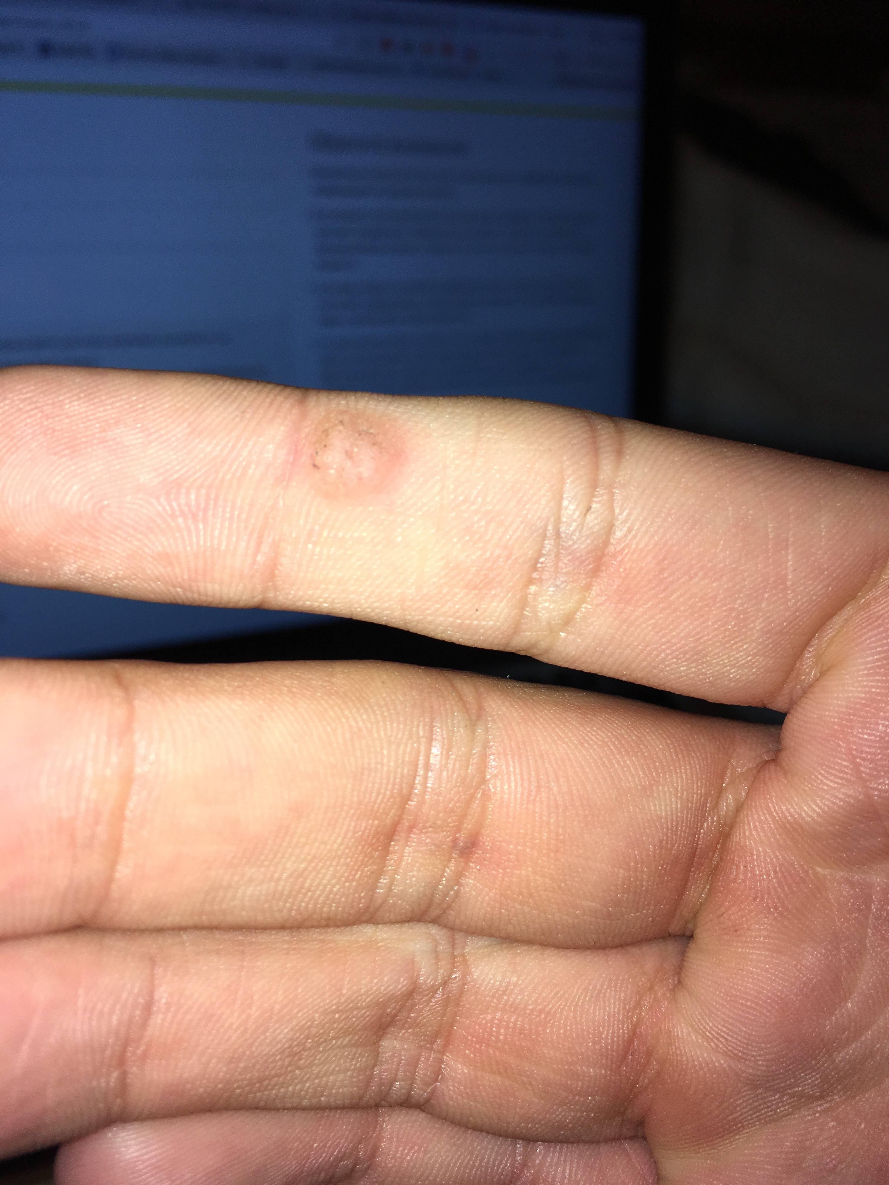 Симптомы и причины появления натоптышей на пальцах ног. способы лечения недуга в домашних условиях