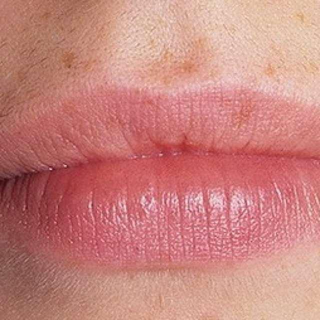 Заеды в уголках рта: причины и лечение.