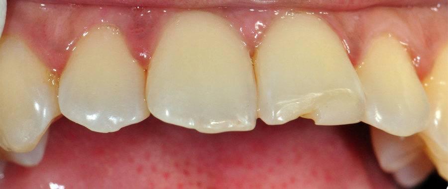 Причины почему крошатся зубы и что с этим делать