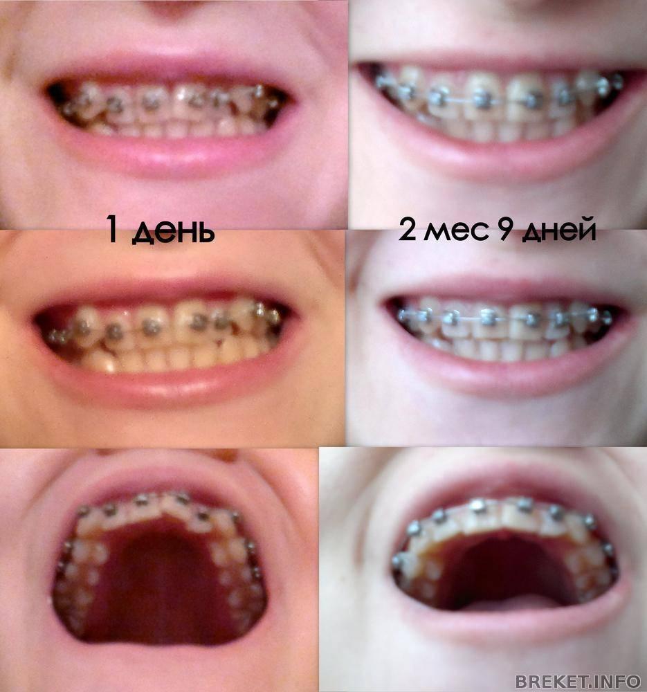 Как сделать свою улыбку привлекательнее - можно ли ставить брекеты на одну челюсть?