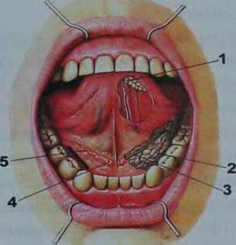 Как избавиться от прозрачных пузырьков во рту на слизистой