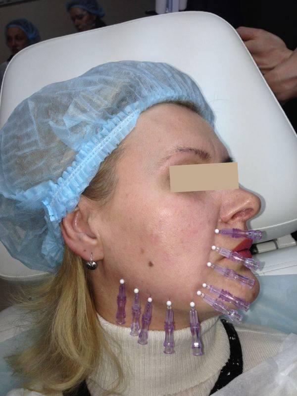 Bdr-процедура омоложения лица: новый метод