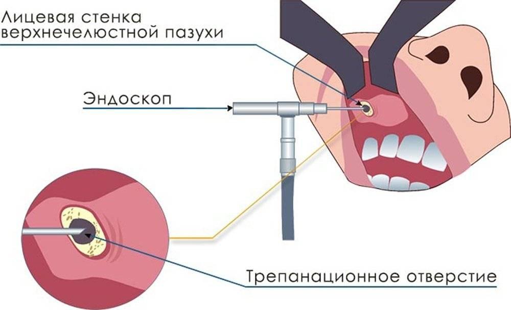 Перфорация гайморовой пазухи: возможные причины, симптомы, лечение