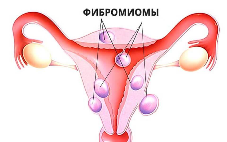 Препараты при миоме матки