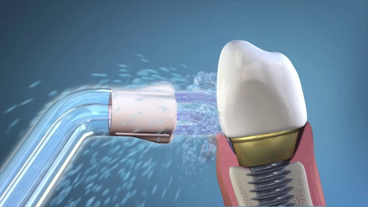 Стоматологический уход за зубными имплантатами – гигиена полости рта и профессиональная помощь стоматолога