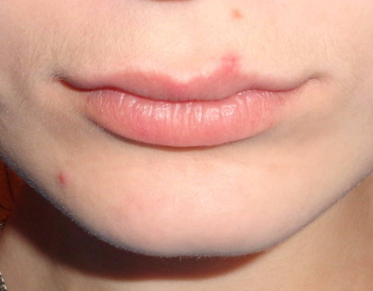 О чем говорят родинки в области губ