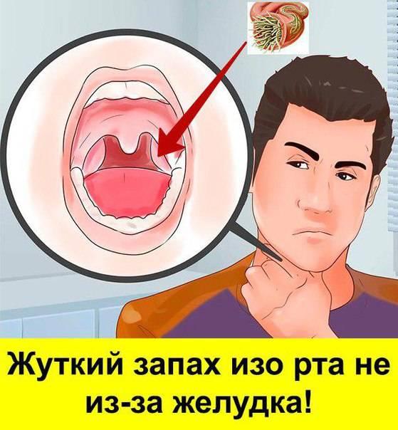 Поражены миндалины: запах изо рта. как избавиться от неприятного симптома