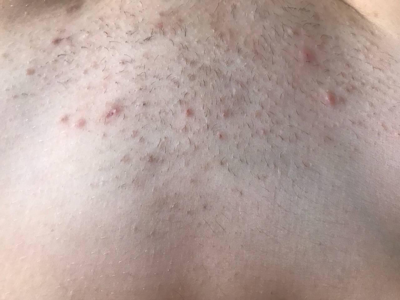 Прыщи, сыпь, зуд после бритья: в чём причина и как быть