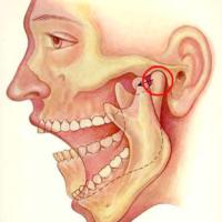 Почему болит челюсть возле уха с одной или двух сторон, варианты лечения
