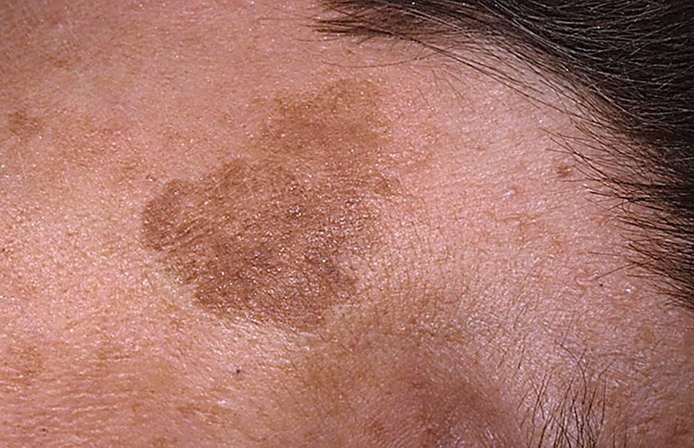 Красные, белые, коричневые пятна и высыпания на теле и лице ребенка: причины и лечение