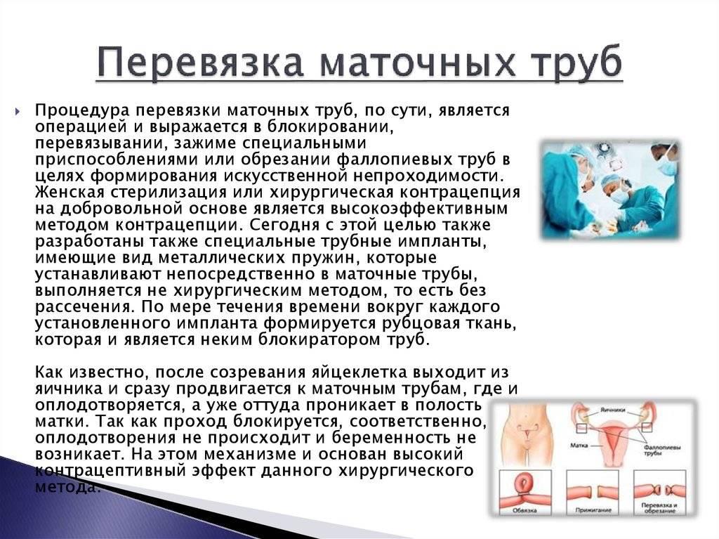 Стерилизация женщины, перевязка маточных труб: последствия, когда разрешена