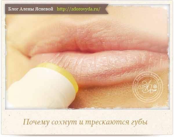 Почему сохнут губы и трескаются уголки рта?
