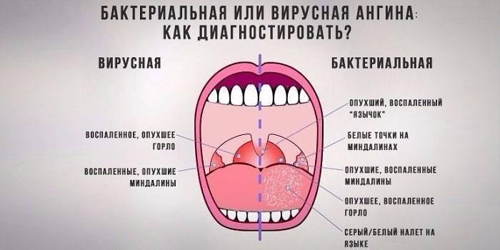 Бактериальная ангина симптомы у взрослых