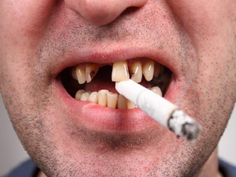 После сигарет болит язык